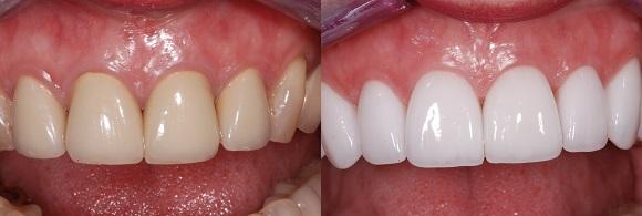 Dental Treatments Morgan Heights Dentalmorgan Heights Dental